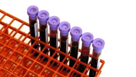 Un biomarker per individuare e monitorare l'Alzheimer