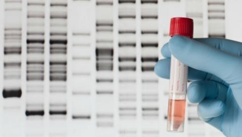 Brca: il test genetico può predire il rischio di tumore della prostata?