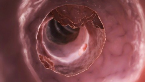 Dai batteri intestinali una risposta al tumore del colon?