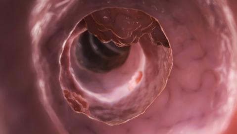 Un'alterazione genetica temporanea legata al tumore del colon