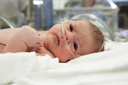 Neonati prematuri: quando è giusto rianimare?