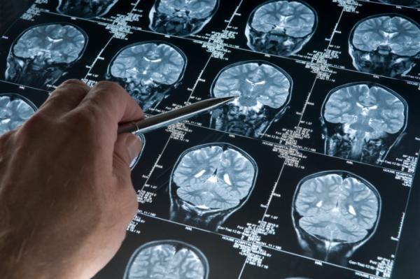 Con la diagnosi precoce fermi l'Alzheimer