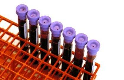 BAT-Test, una possibilità per scovare le allergie alimentari