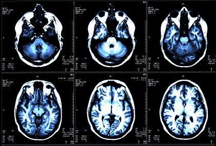 Sclerosi multipla: scoperto il meccanismo di produzione della mielina