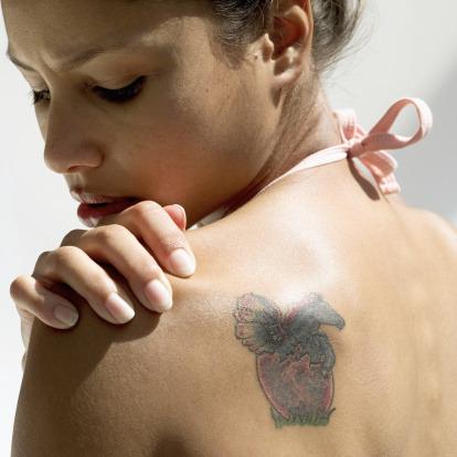 Come rimuovere un tatuaggio?