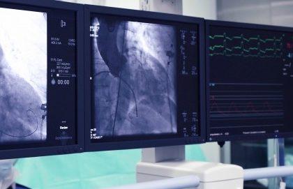 Ictus: è l'era della chirurgia endovascolare