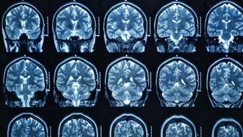 Cure più mirate per le metastasi cerebrali