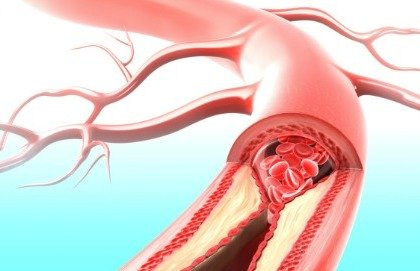 Stenosi carotidea asintomatica: serve l'intervento?