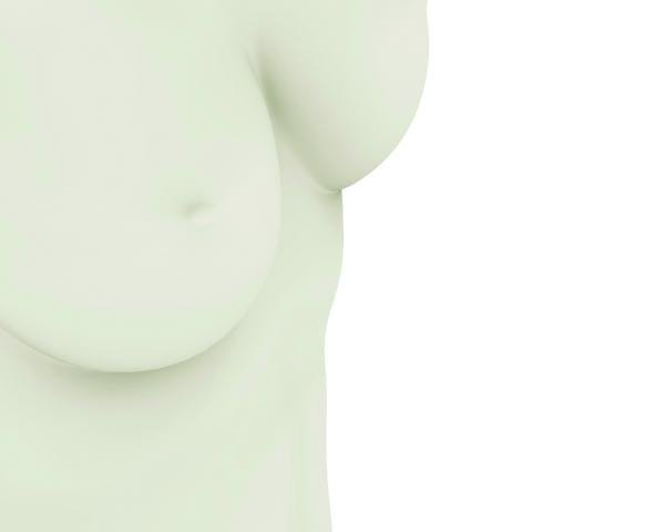 Protesi mammarie: perchè non ci sono i registri nazionali?
