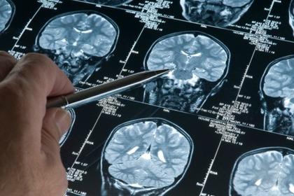 La sclerosi multipla al femminile è in aumento