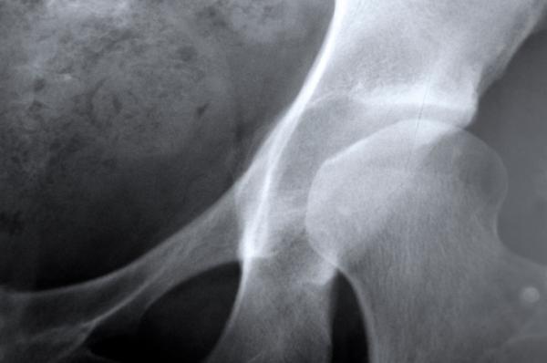 Fra 10 anni in Europa 34 milioni di donne con l'osteoporosi