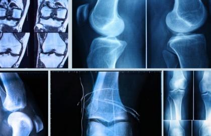 Artroscopia: la metodica che ha rivoluzionato la chirurgia ortopedica