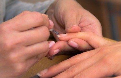 Eczema microbico del reclamo per il paziente