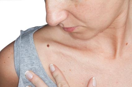 Melanoma, un test svela se il farmaco è efficace