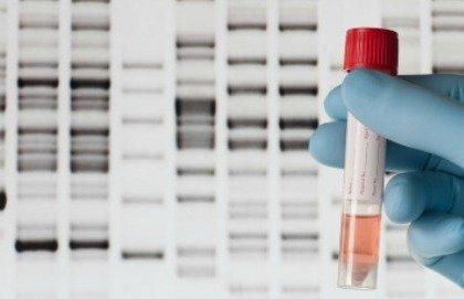 Tracce di materiale genetico nel sangue per predire l'esito di un arresto cardiaco