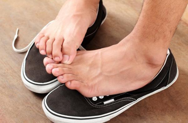 Il piede dell'atleta è una malattia solo degli sportivi?