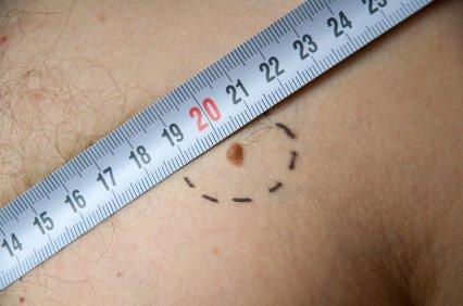 Il melanoma ora fa meno paura
