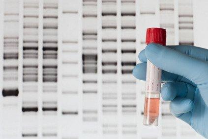 Malattie genetiche: nuove promettenti strategie di cura