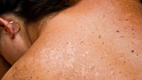 La pelle va protetta dal sole solo durante il periodo estivo?