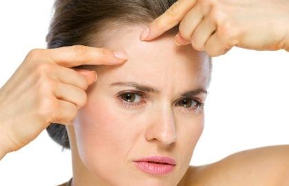 Sole a piccole dosi se hai l'acne