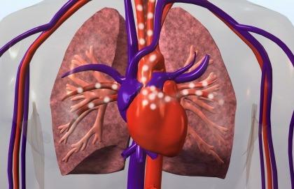 È possibile avere un tumore al cuore?