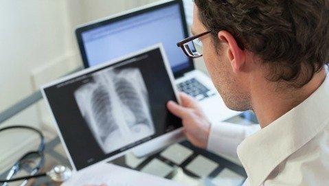 Tubercolosi, l'Italia punta a eliminarla entro il 2050