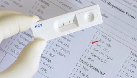 Epatite C: non è solo questione di fegato