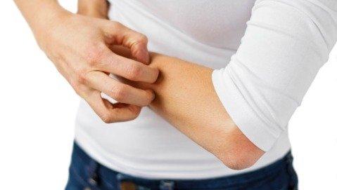 Ci sono cure nuove per la psoriasi?