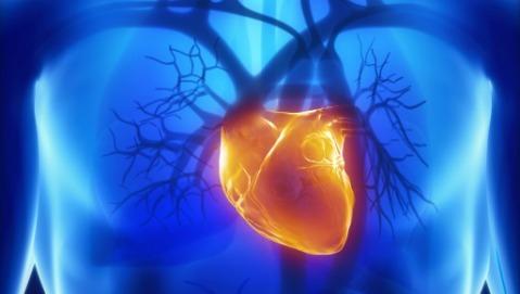 Il pacemaker  senza filo riduce le infezioni