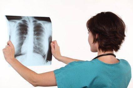 Tubercolosi: le cure funzionano