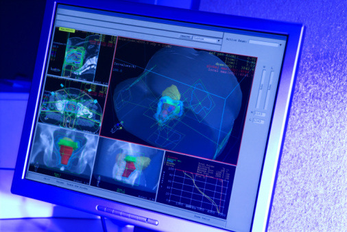 13 tappa: Savona-Cervere 121 Km Le nanotecnologie, l'arma in più contro i tumori